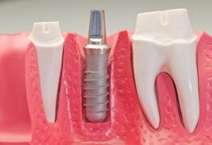 implantologia-dentale-1