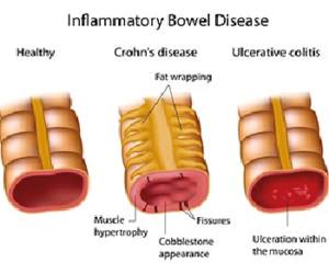 disbiosi-intestinale